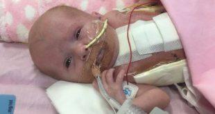 Langka, Bayi Ini Lahir Selamat dengan Jantung di Luar Tubuhnya