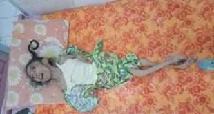 Butuh Uluran Tangan, Putri 10 Tahun Berjuang Lawan Kelainan Otak