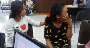 Tragis, Jadi Korban Jambret Wajah Wanita Ini Sampai Tergerus Aspal